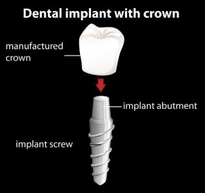 Dental Implant Breakdown Mississauga
