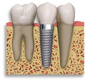 Dental Implants Mississauga